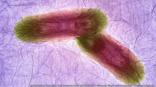 البكتيريا على سطح لوح من أكسيد الغرافين - عزت سفيان، وهمام كافا، وخلود تي الجمال، بكلية الطب الملكية في لندن.