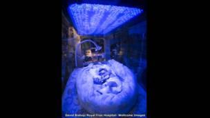 طفل مبتسر يتلقى العلاح بالضوء، دايفيد بيشوب، مستشفى رويال فري، لندن.