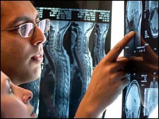 بررسی عکس رادیولوژی از علائم ام اس