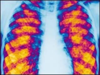Exame mostra pulmões com fibrose cística (arquivo)