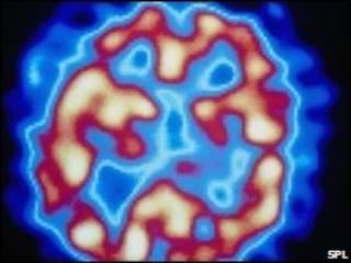 Sintomas da esquizofrenia incluem alucinações e depressão.