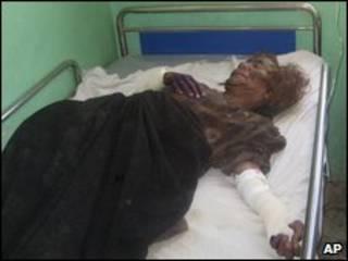 Mulher ferida em Farah, no Afeganistão