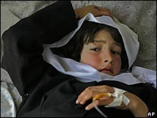 Niña afgana recibe atención médica en la provincia de Kapisa