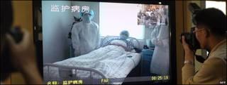 Un paciente con grip porcina en China