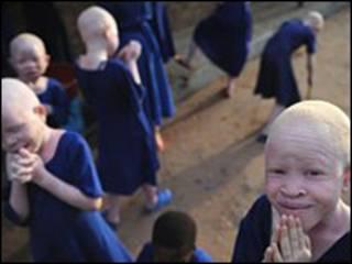Albino wamekuwa wakiuawa Tanzania kwa imani za kishirikina