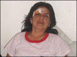 Monica Llumiquinga após deixar o hospital (foto da família)