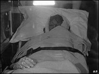 Michael Jackson trên xe cứu thương sau tai nạn