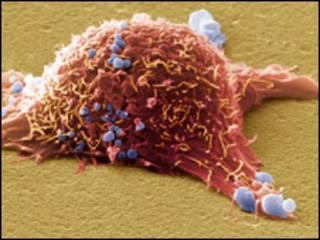 سلول سرطان
