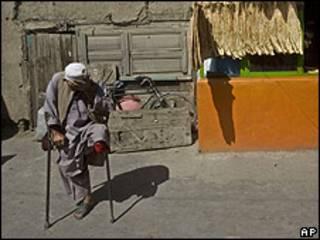 Afgano que perdió una pierna en una explosión