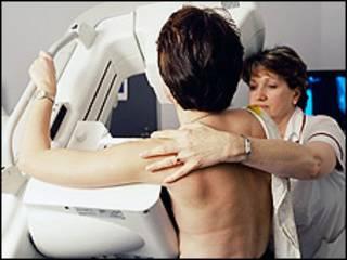 Revisión contra el cáncer