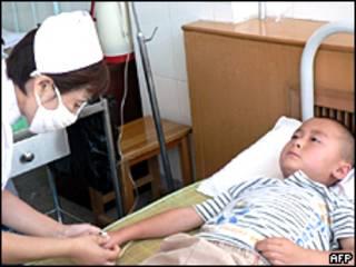 Niño chino en tratamiento