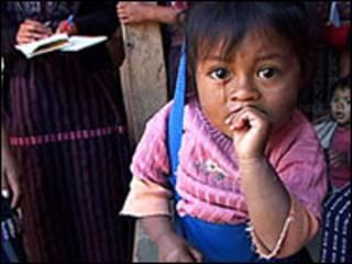 Niño desnutrido en Guatemala. Foto cortesía Unicef.