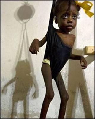 Niña malnutrida en Haití