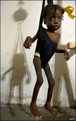 Criança desnutrida no Haiti