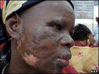 Vítima de lixo tóxico na Costa do Marfim
