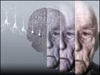 तनाव से डिमेंशिया का ख़तरा