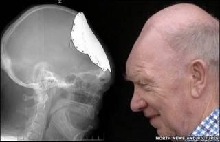 Arte mostra raio-x do crânio e foto da cabeça de Moore