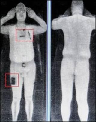 Escáneres corporales