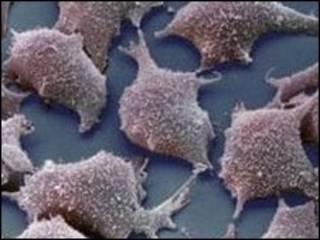 خلايا ليفية