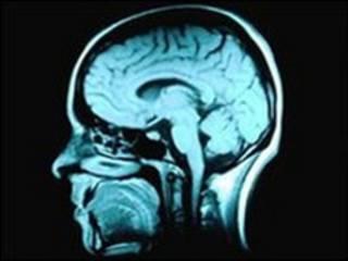 المسح المغناطيسي للمخ