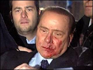 Silvio Berlusconi após ser atacado