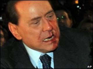 O premiê italiano, Silvio Berlusconi, após ser atacado (AP)