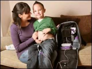 Keaton Foale com sua mãe e o tubo de alimentação (Caters News)