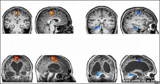 Imagen de un estudio sobre respuesta cerebral del Consejo de Investigación Médica, El Centro Wolfson de Imagen Cerebral de Cambridge (Reino Unido) y la Universidad de Lieja (Bélgica).