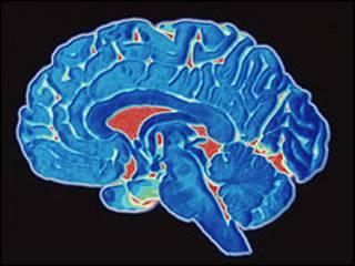 Cérebro (arquivo)