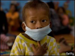 африканский ребенок с ВИЧ
