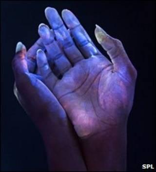 Bacterias en las manos