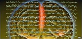 Ondas cerebrales durante una convulsión