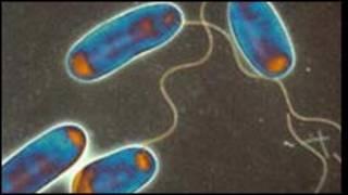Bakteri legionella