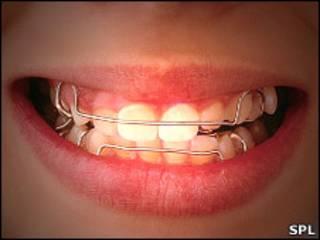 Зубные брекеты во рту у девочки
