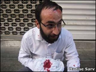 یکی از هواداران آیت الله دستغیب که بر اثر حمله به مسجد قبا زخمی شده است