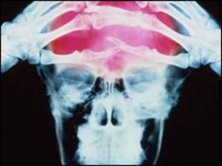 Болящая голова под рентгеном