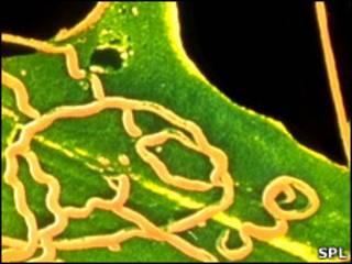 Bactéria causadora da sífilis