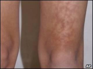 Enrojecimiento de la piel