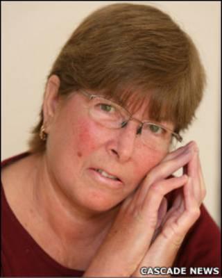 Susan Johnson, que sofre de esclerodermia