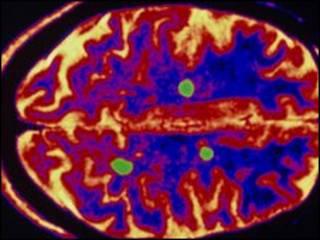 دماغ مريض بالتصلب العصبي المتعدد