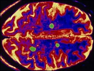Escáner de cerebro con EM (SPL)