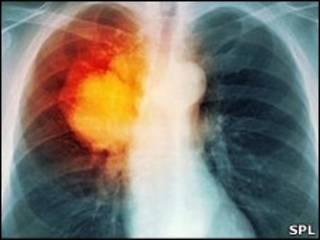 عکس قفسه سینه - علائم سرطان ریه