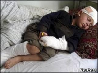 کودک مجروح افغان