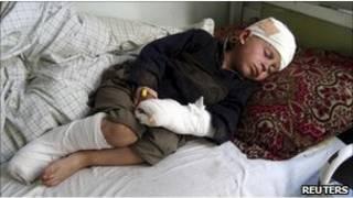 من ضحايا القتال في أفغانستان