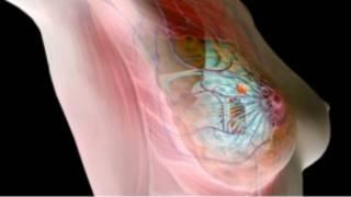 شیوع سرطان پستان در زنان ایرانی