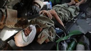 ضحايا أفغان بسبب عمليات الناتو