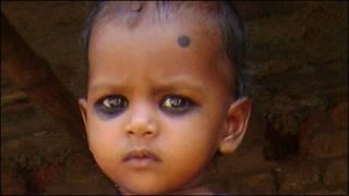Anushka, bebê que quase foi abortado na Índia