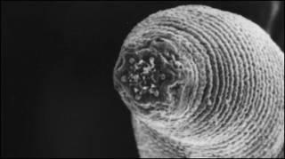 Boca do verme Halicephalobus mephisto (foto: cortesia Universidade de Ghent)