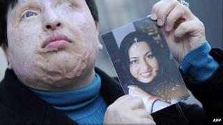 Ameneh Bahrami, víctima iraní de un ataque con ácido que reclama el mismo daño para su agresor.