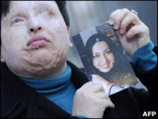 A iraniana Ameneh Bahrami.   Foto: AFP